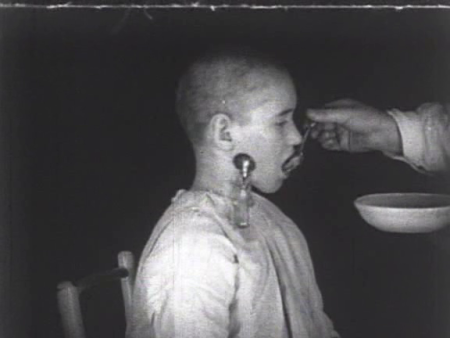 """A still shot from """"Mechanics of the Brain,"""" a 1926 Soviet documentary film about Pavlovian """"conditioning."""" The child in this picture has been surgically implanted with a saliva-catching apparatus for the purposes of behavioral experimentation."""