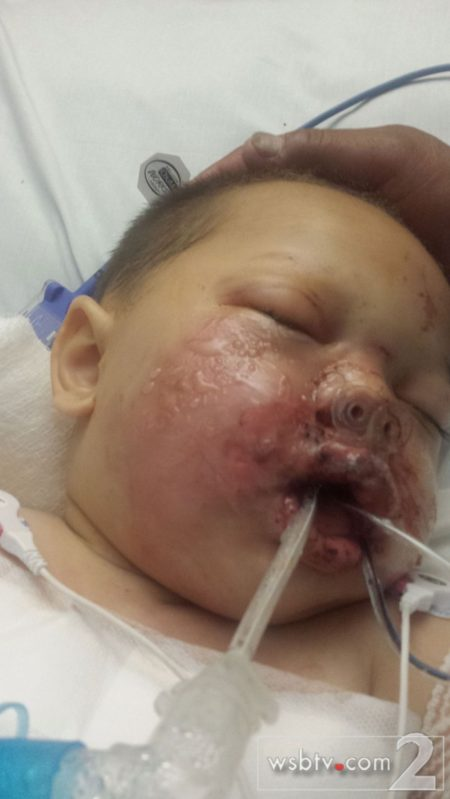 19-month-old son of Alecia Phonesavanh, who was critically injured when police threw a flash-bang grenade into his crib during a SWAT raid