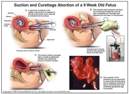 """Suction and Curettage Abortion of a 9 Week Old Fetus: (A) A speculum is placed in the vagina, a tenaculum is clamped to the lip of the cervix and a cannula is inserted into the uterus. (B) The amniotic fluid, placenta and fetus are suctioned through the cannula into a collection jar. The fetus and placenta are torn apart in the process. (C) The uterine cavity is scraped with a curette to determine whether any significant amout of tissue remains. (D) The contents of the collection jar are examined to assure that all fetal parts and an adequate amount of tissue commensurate with estimated gestational age are present."""