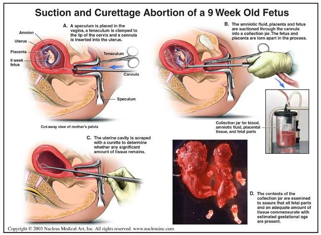 """""""Suction and Curettage Abortion of a 9 Week Old Fetus: (A) A. """""""